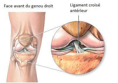 Traitement ligament crois genou et rupture ligament for Douleur genou interieur