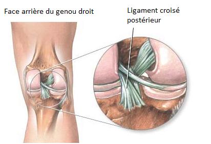 comment soigner ligament croisé